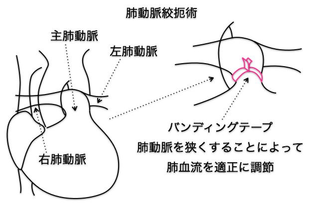 手術 バンディング