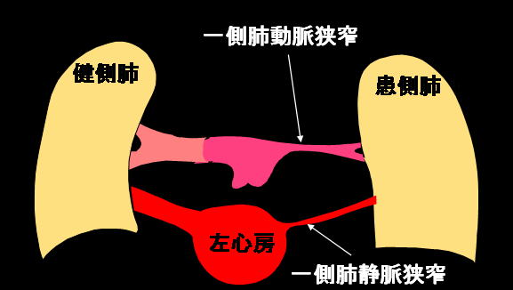 肺動脈内隔壁作成術