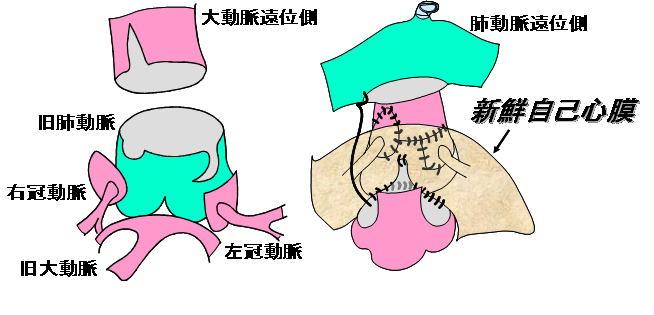 ジャテーン手術