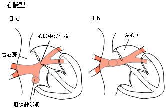 心臓型IIa・IIb