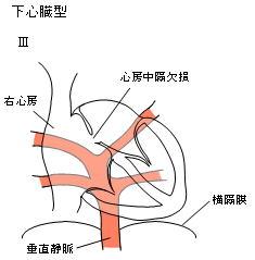 下心臓型III