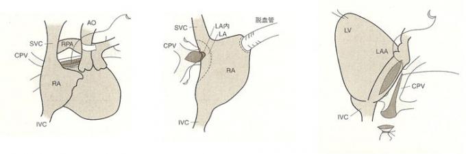 総肺静脈還流異常症手術 説明イラスト