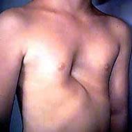 漏斗胸 手術前写真