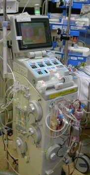 持続血液濾過透析