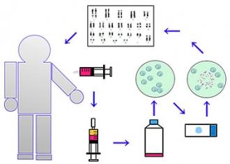 染色体検査:イラスト