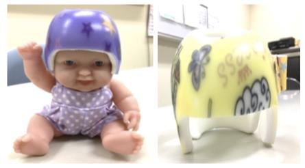 ヘルメット療法