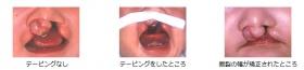 写真:テーピングなし、テーピングをしたところ、唇裂の幅が矯正されたところ