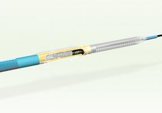 DCA:中央の窪んだ所にカッターが内蔵されており、反対側のバルーンを拡張することにより、プラーク(粥腫)が入り込み、カッターによりプラークが切除されます。