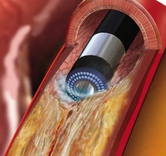 ELCA(エキシマレーザー冠動脈形成術)このレーザー光を動脈硬化の起こった冠動脈内の病変組織に照射することによって、閉塞した血管を開通させます。(© Koninklijke Philips N.V., 2004 - 2019. All rights reserved.)