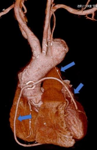 冠動脈バイパス術後。グラフとは3本とも開存している(矢印)。