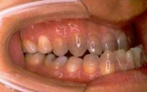 手術前口腔内側面