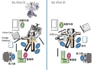 「当院におけるロボット支援下胃切除術」