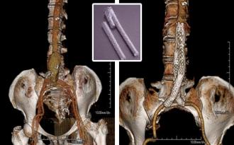 大動脈瘤の3D-CT画像02