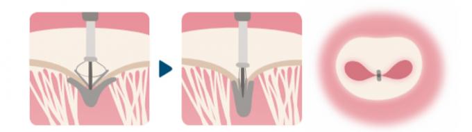 カテーテルを経由し、左房に持ち込んだクリップを僧帽弁の下(左室側)に差し込み、うまく閉鎖できない弁尖をクリップでとめる手法