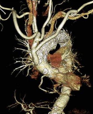 胸部大動脈瘤ステントグラフト治療02