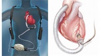当院で管理可能な植込型補助人工心臓
