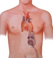 体外設置型の左室補助人工心臓