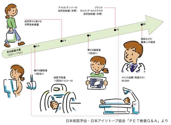 CT検査による被ばく線量